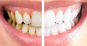 La Dentisterie Esthétique